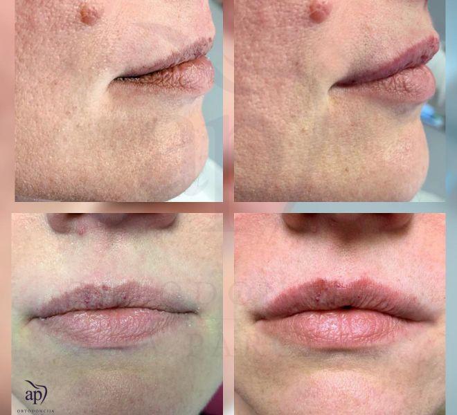 Povecanje usana - rezultati (1)
