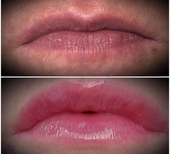 Povecanje usana - rezultati (3)